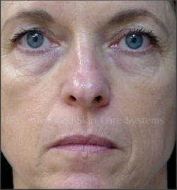 Pca Chemical Peels Before And After Toronto By Celluline